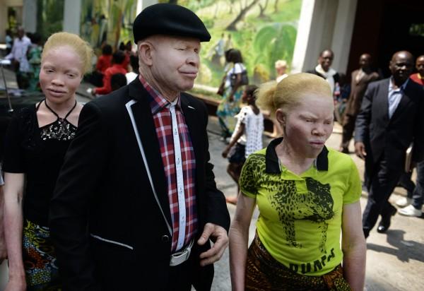 Texas Mwimba entouré de membres albinos de sa fondation  lors d'un office dans une église qui tente de défendre les albinos. © Aude Osnowycz